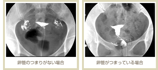 痛み 造影 卵 管
